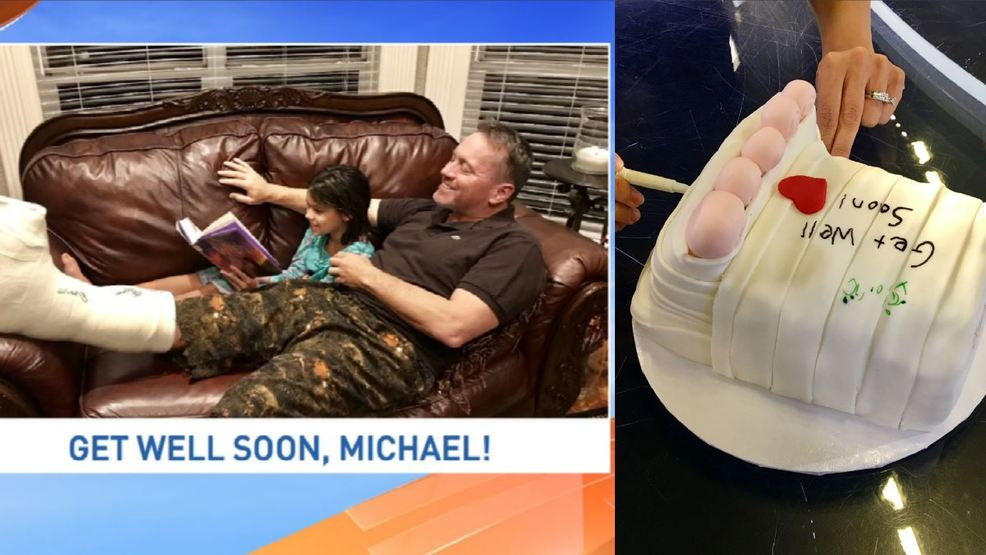 Michael Garofalo recovering from foot surgery, gets awesome foot