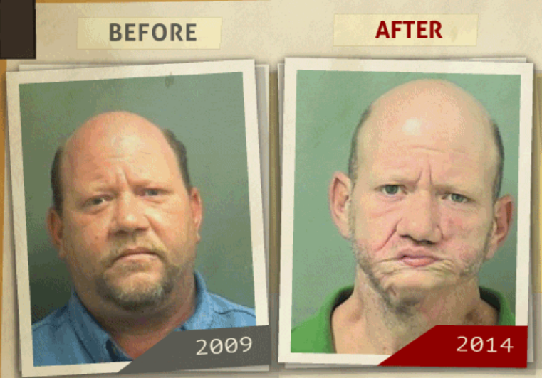 Side-by-side 2009 and 2014 photo taken of man who reportedly had a 'possession of cocaine ' charge. (Photo, info from rehabs.com/)