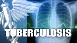 Providence St. Vincent Medical Center caregiver diagnosed with tuberculosis